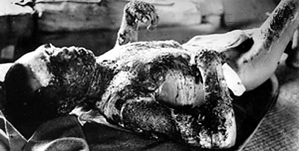 Victim_of_Atomic_Bomb_001 全身に大やけどをおった被爆者。8月7日撮影。