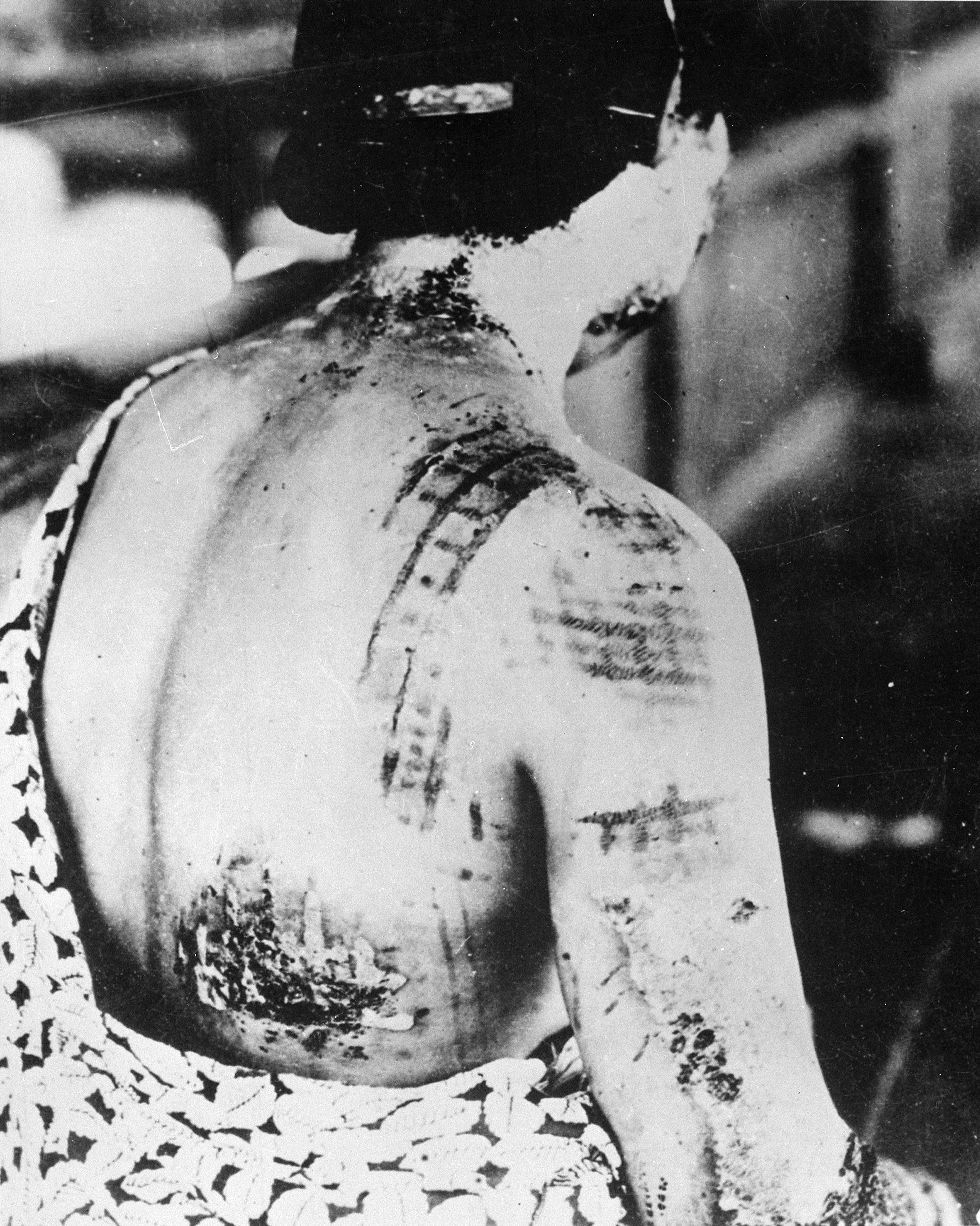 被爆者 The_patient's_skin_is_burned_in_a_pattern_corresponding_to_the_dark_portions_of_a_kimono_-_NARA_-_519686