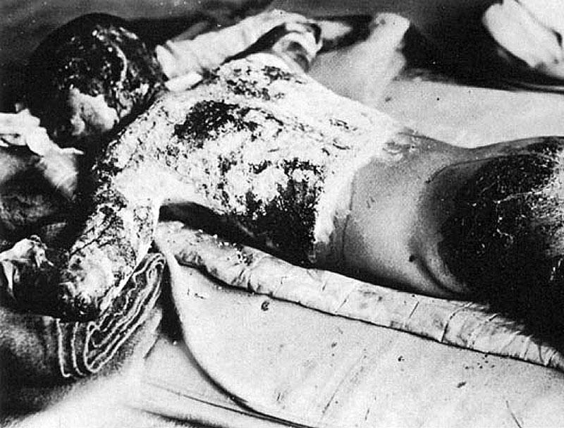 原爆犠牲者 Victim_of_Atomic_Bomb_002